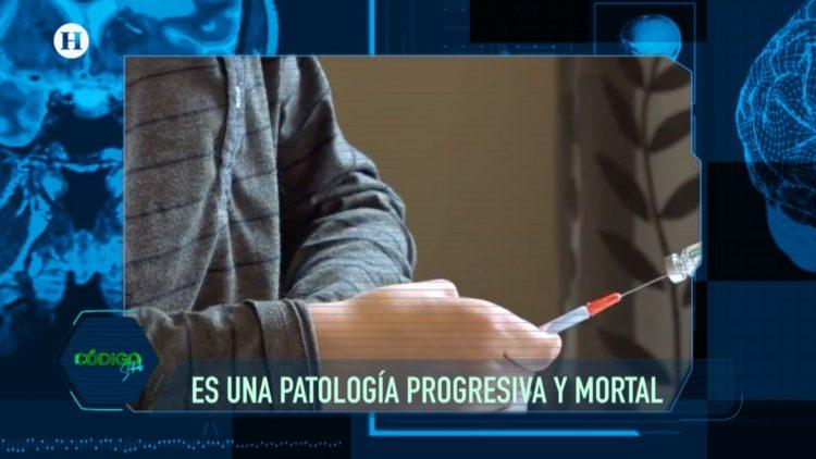 Pompe Fabry enfermedades raras El Heraldo TV Código Salud